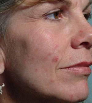 I posti della pelle di faccia infiammati